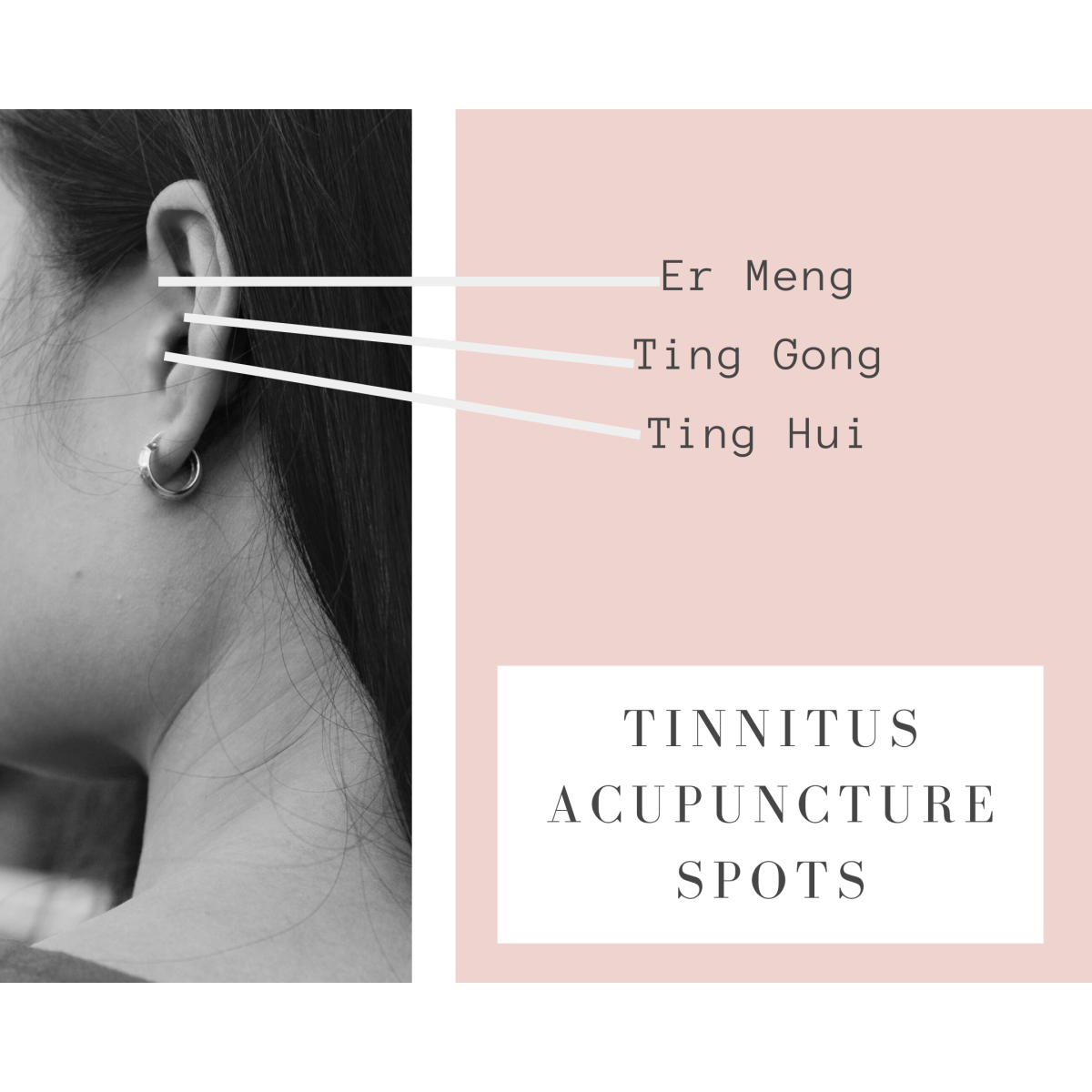 Acupuncture Spots for Tinnitus