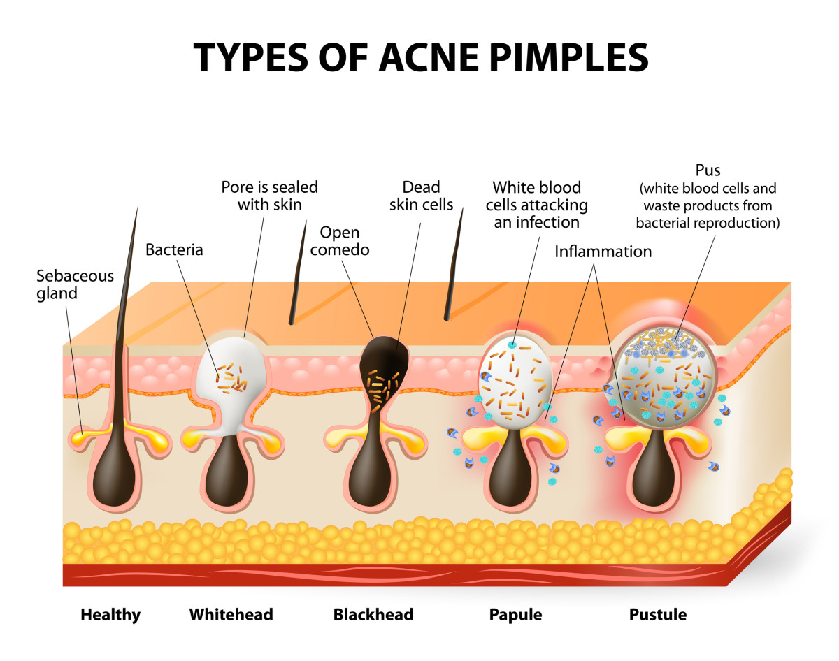 Acne is not that simple to define.