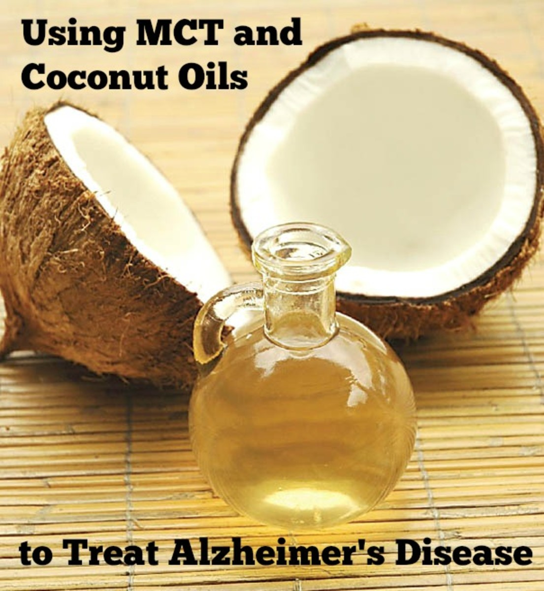 Benefits of MCT and Coconut Oils in the Treatment of Alzheimer's Disease