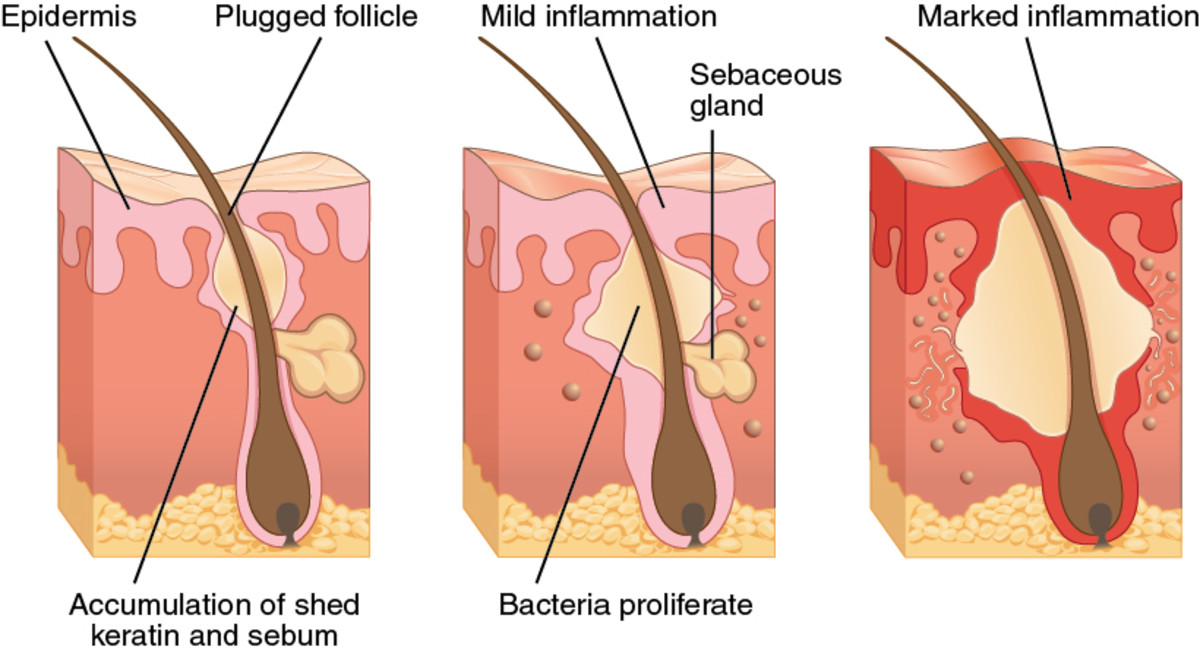 As you can see, it is the way our body reacts and tries to fight off the clog pore that causes inflammation, redness, and swelling. By gently cleansing you cause less irritation to the affected area.