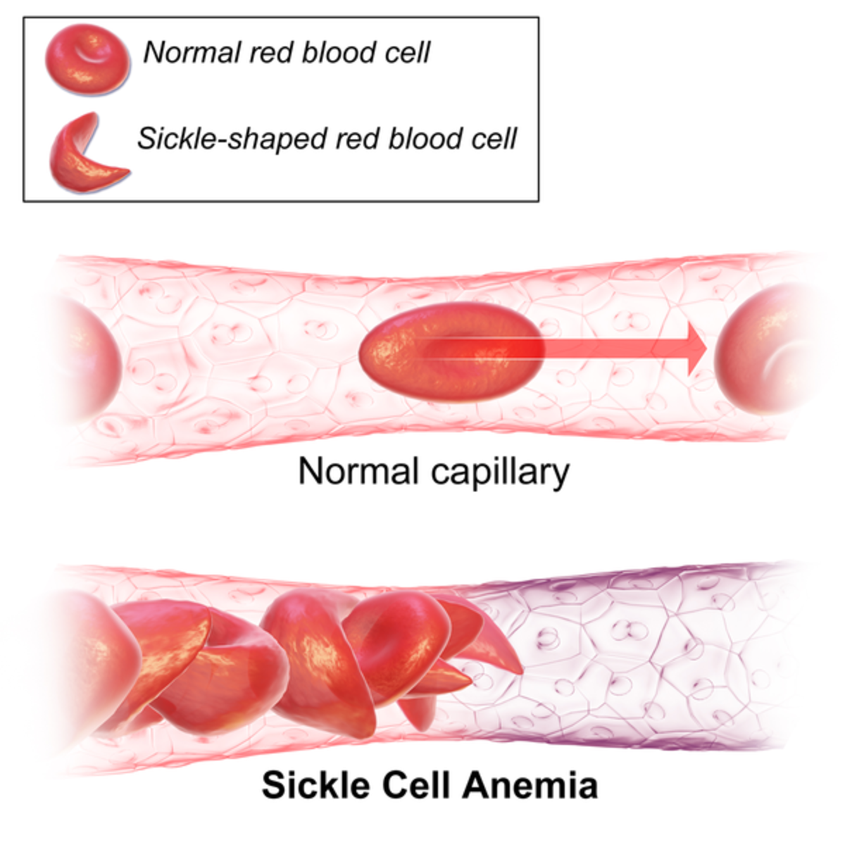 the prevalence and effects of sickle cell anemia in the united states Child food insecurity and iron deficiency anemia in low-income infants and toddlers in the united states  sickle cell disease, or lead  insecurity and iron.