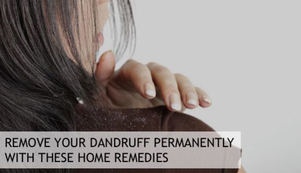 Remove Your Dandruff Permanently With These Home Remedies
