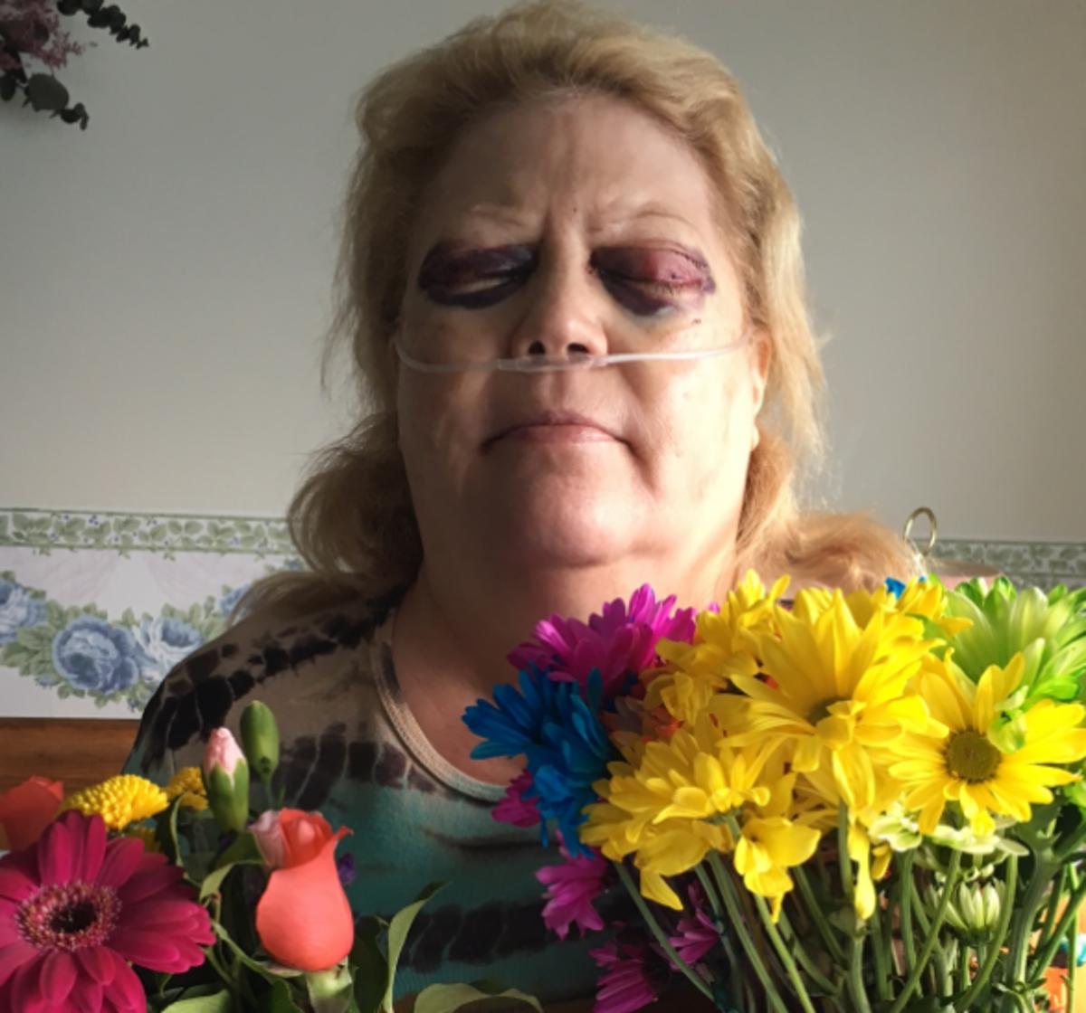My Orbital Decompression Surgery Nightmare