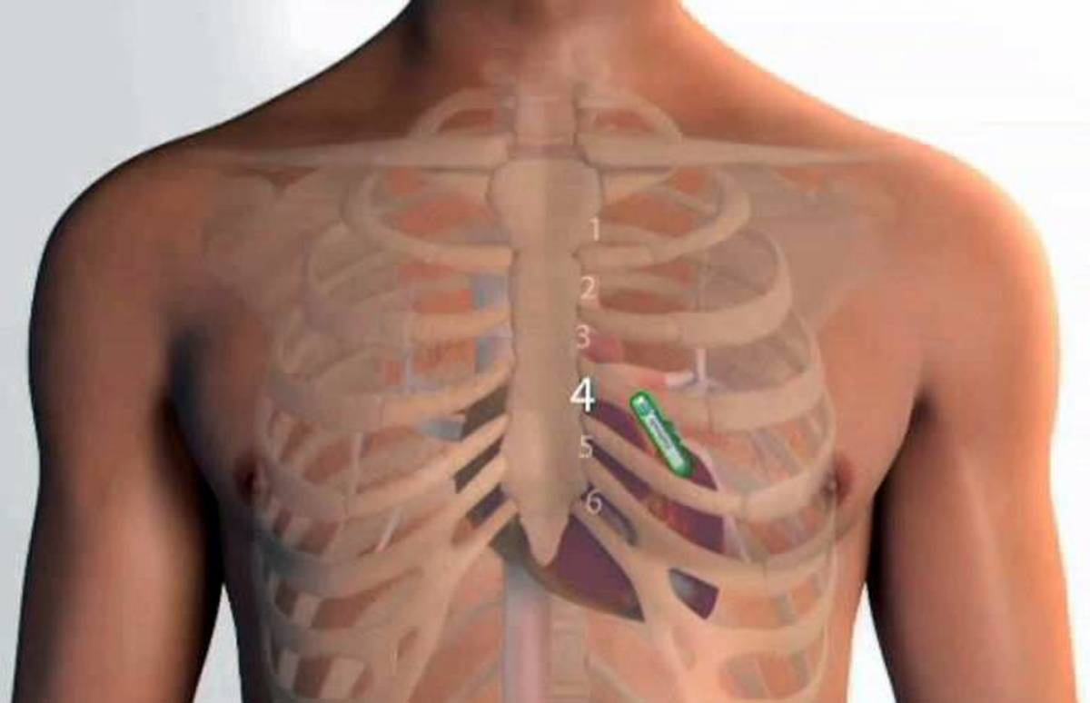 The device is placed between the 4th and 5th rib on the left side of the chest.