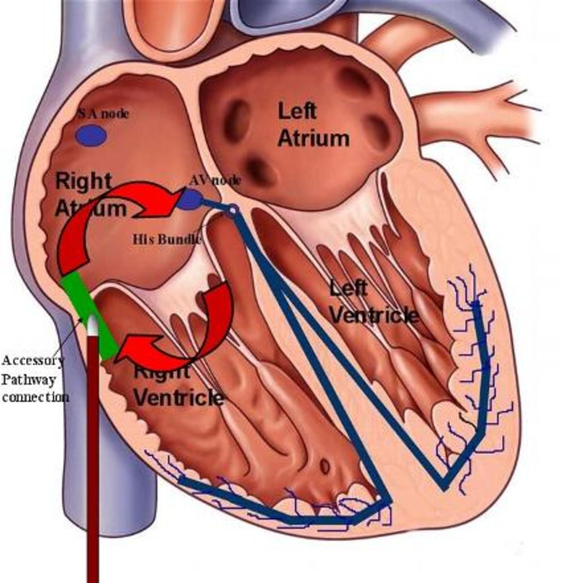 During this procedure, the section of the heart that is causing the problem is cauterized.