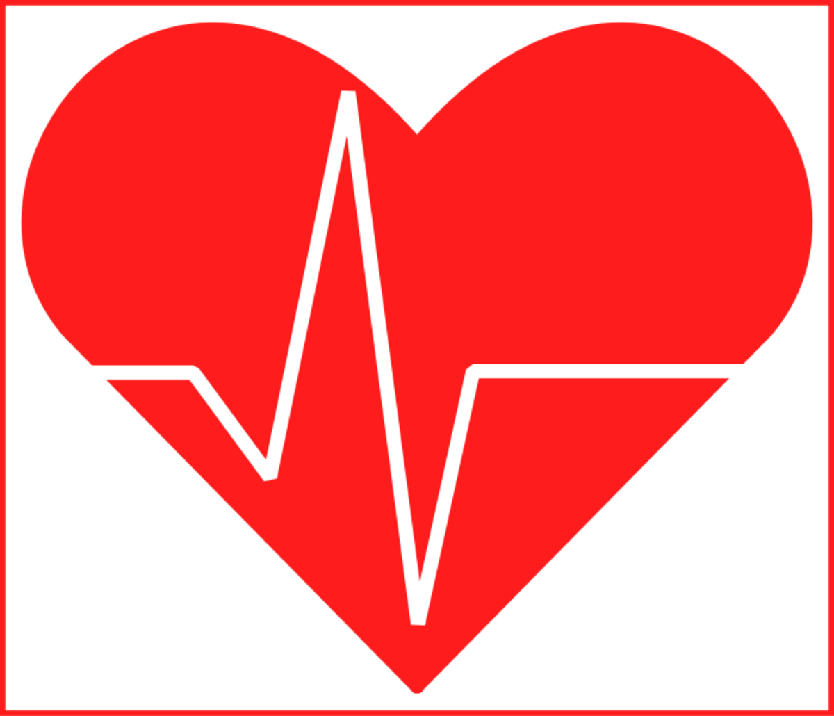 My Cardiac Health Scare: A Silent Heart Attack?