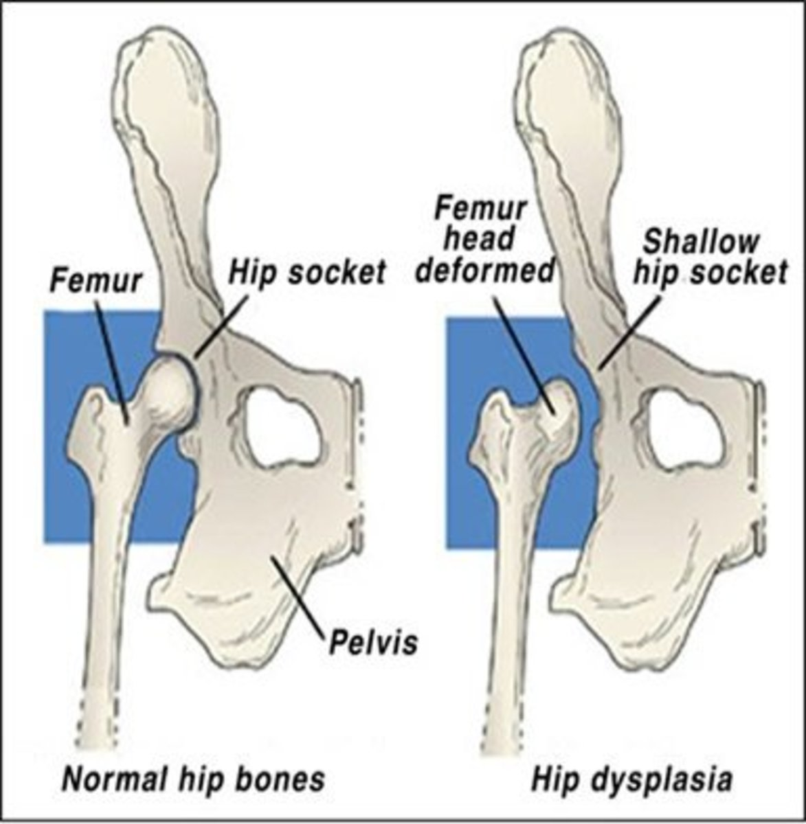 A Simple Guide to Hip Dysplasia in Dogs