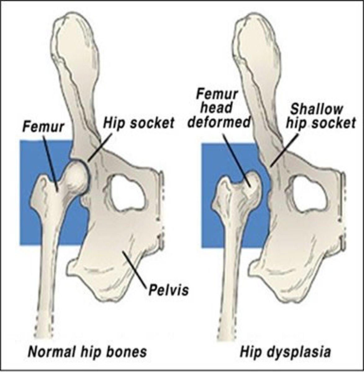 Diagram of Hip Dysplasia