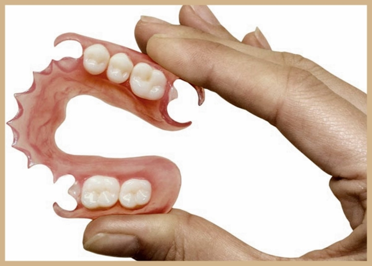 Valplast flexible dentures are a popular choice because of their lightweight flexibility, comfort and fit without the need for wires or adhesive