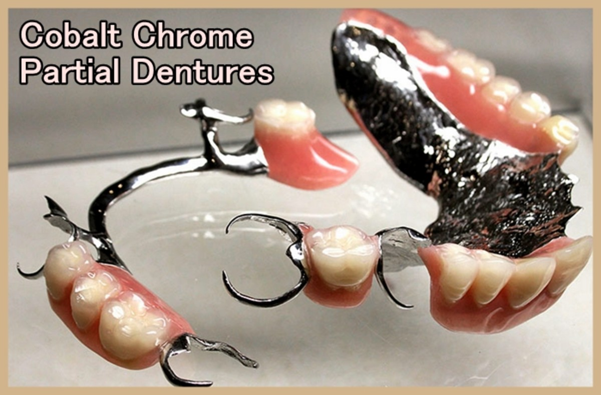 Typical appearance of cobalt chrome partial dentures
