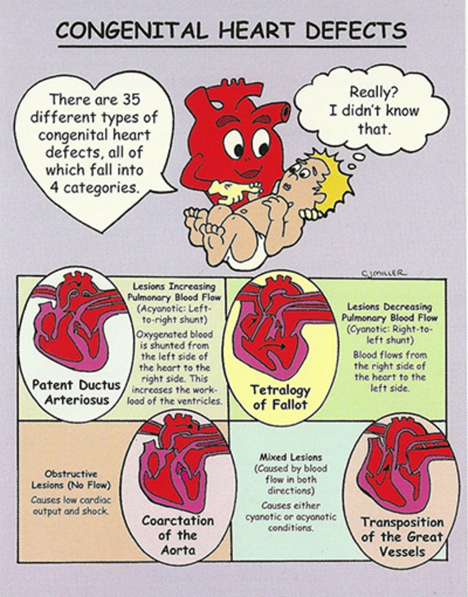 your-chd-heart-baby-needs-your-support-but-so-do-you
