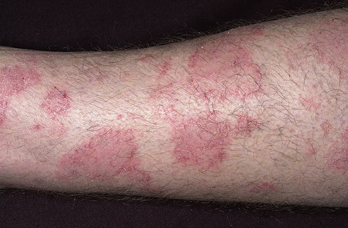 Healing From Eczema