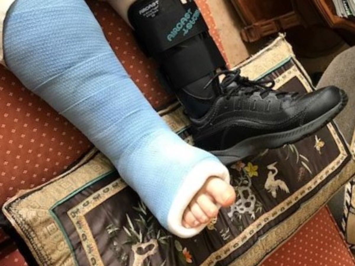 how-to-live-with-a-broken-bone