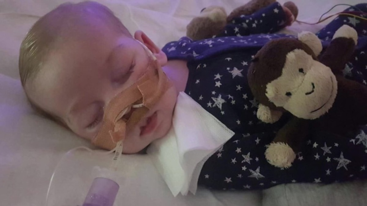 Baby Charlie - Who Decides When a Terminally Ill Patient Must Die?