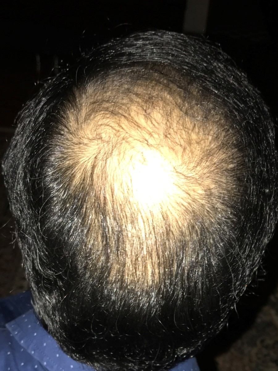 My Daily Experience Post-FUE Hair Transplant
