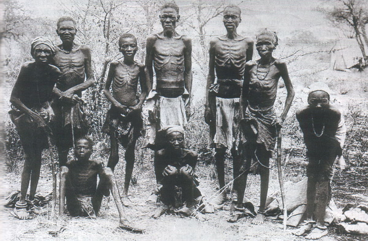 Herero people starved to the point of emaciation.
