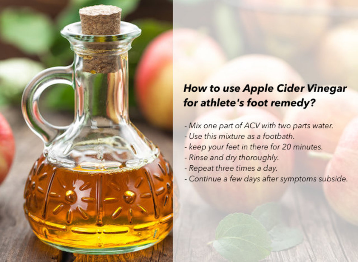 Apple Cider Vinegar (ACV) is a popular folk remedy for the treatment of medical conditions, including athlete's foot.