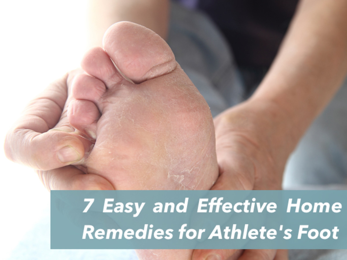 Athlete's foot, in medical term it is called tinea pedis, is an infection caused by fungi that appears between the toes.