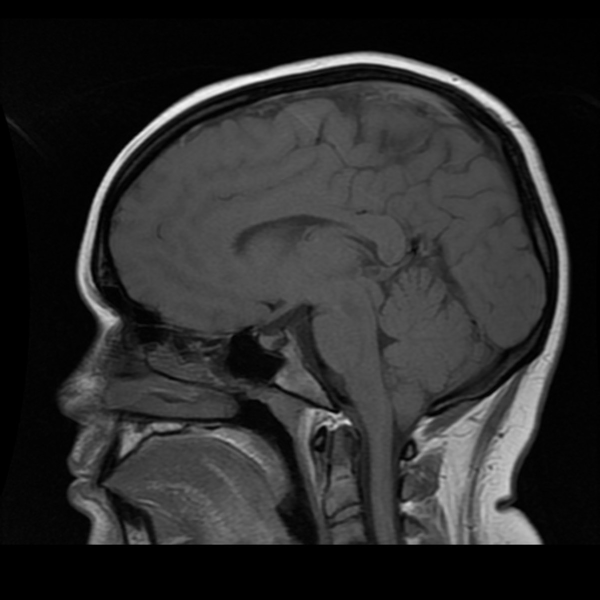 A photo of one of my MRIs showing the herniation of my brain, around 7mm in length.
