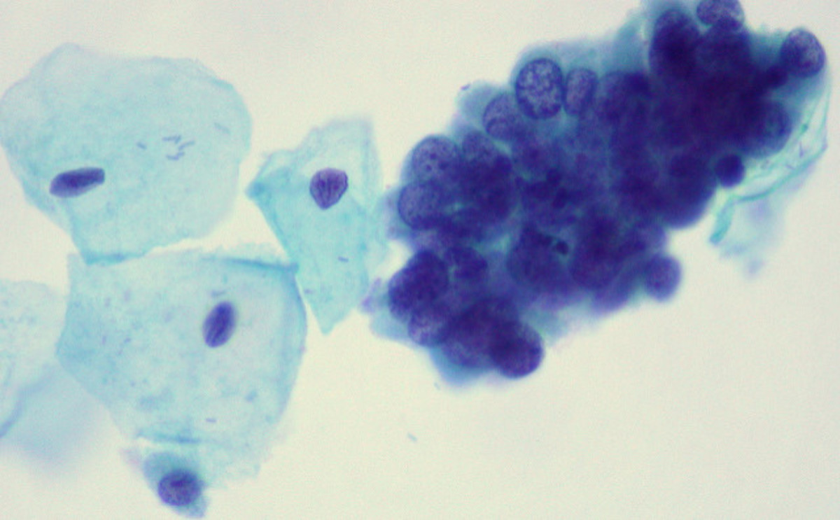 Cervical cells, with dysplasia.