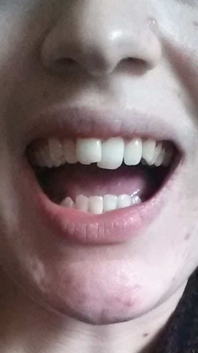To give you some idea of the treatment I went through, this is a photo of my teeth before I had any treatment. I had over-crowding, which had pushed my front teeth to overlap, and I had very crooked bottom teeth. I also had a slight over-bite.