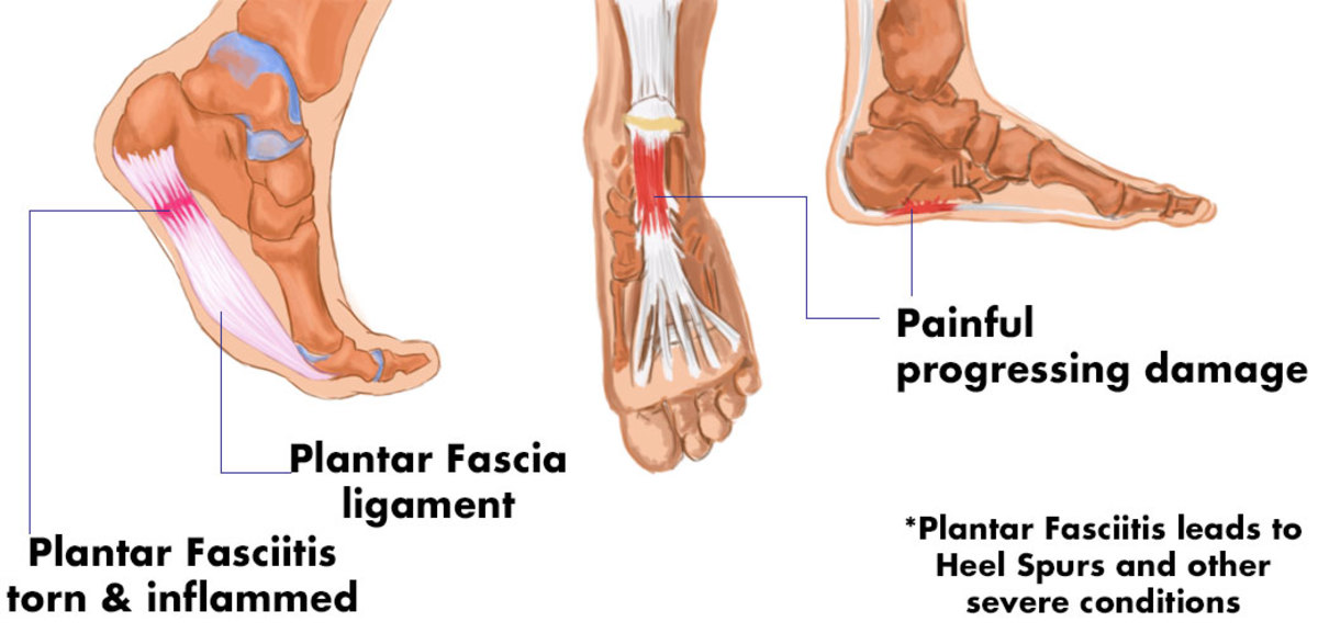 Plantar fasciitis: the right shoe to aid healing.