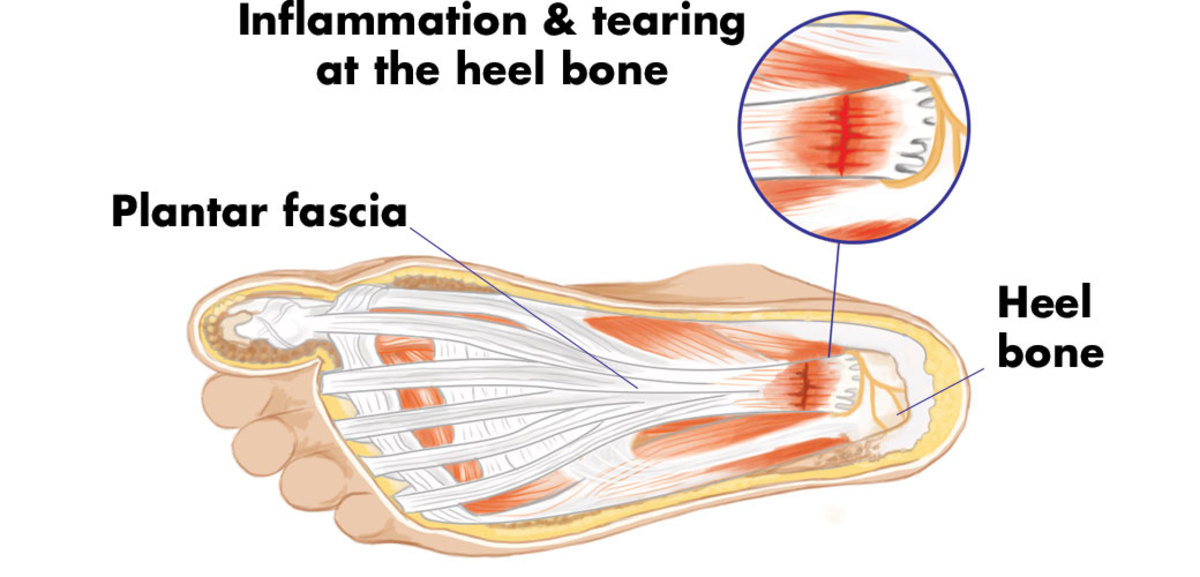 What causes plantar fasciitis.