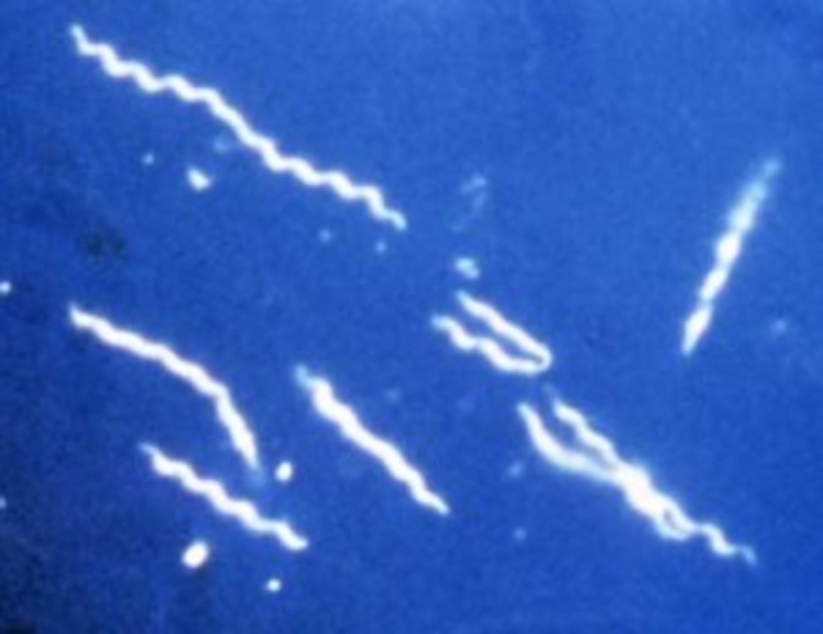 Photomicrograph of Burrelia burgdorferi, the spirochete that causes Lyme disease.