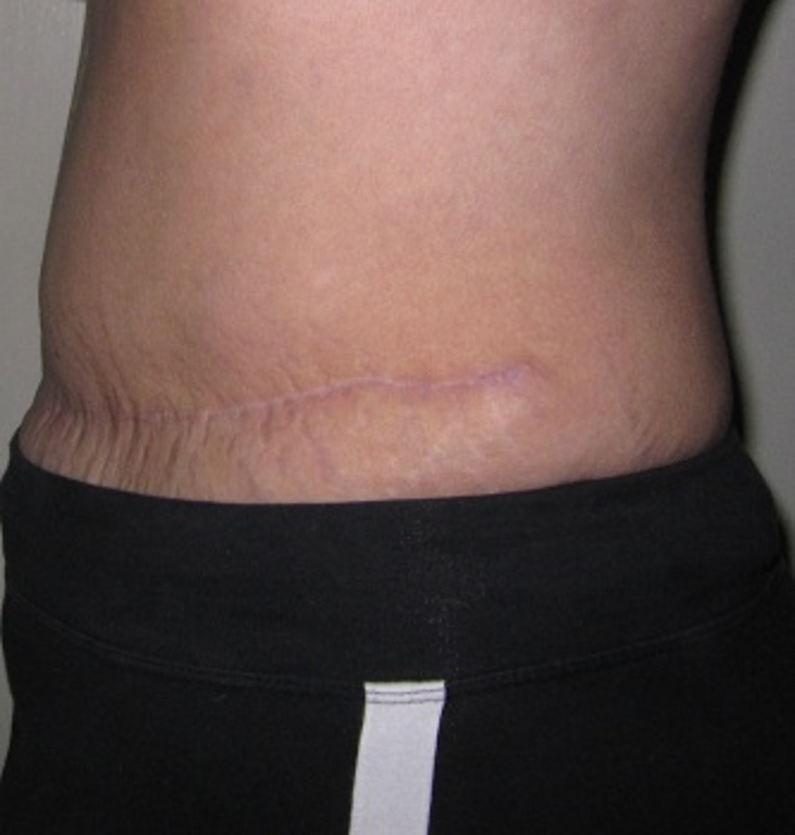 Profile view, left hip (11 months following TRAM surgery): skin bulges out a little over tighter scar skin. At end of scar line, skin forms a little chunk of extra skin like a sewing pattern that doesn't quite lay flat.