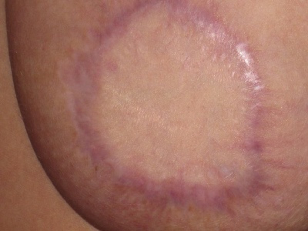 The scar tissue is thicker/broader in areas where more scabs formed during the healing process. There's barely any hardness remaining inside the bottom of the left breast.