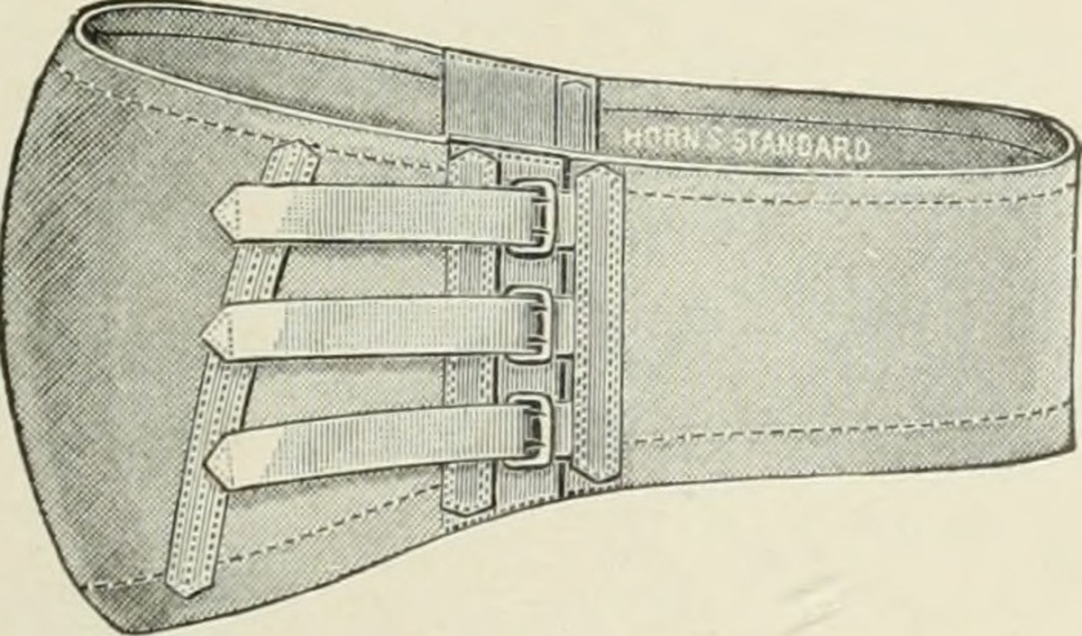 An example of an abdominal hernia belt. It is similar to a back support or weightlifting belt and is meant to keep your gut in place.