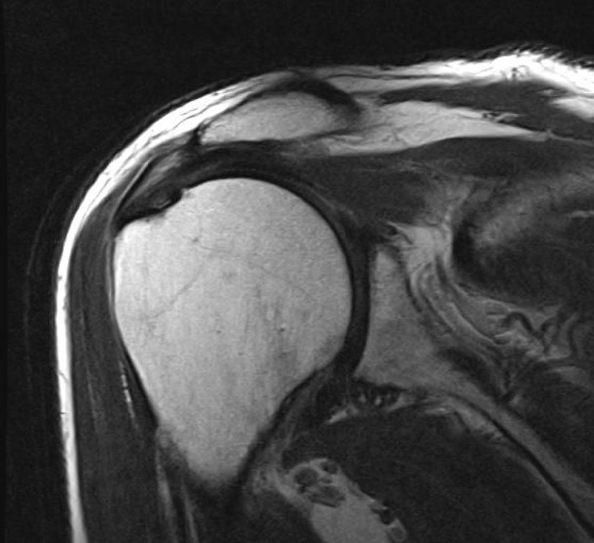 One section of my MRI taken in 2011