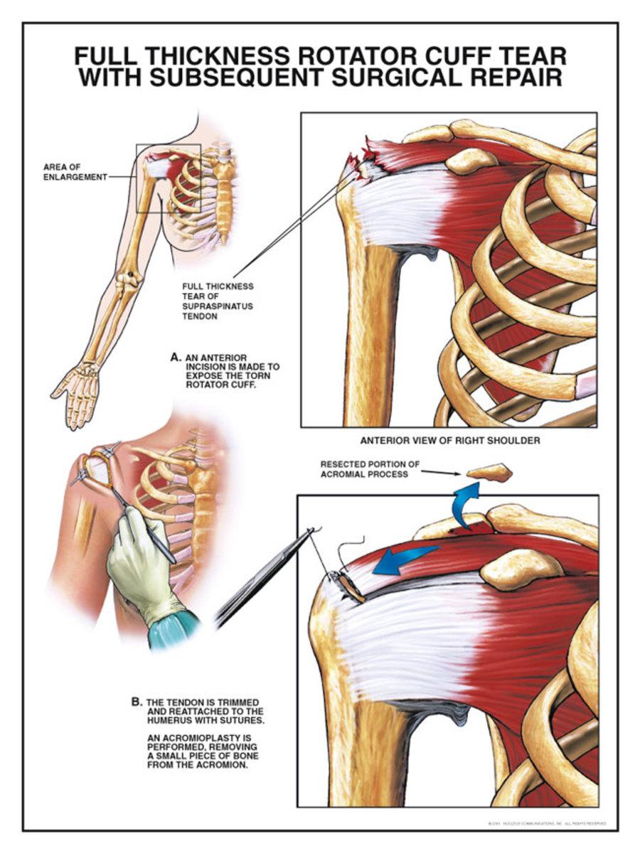 Rotator cuff tear surgical repair procedure