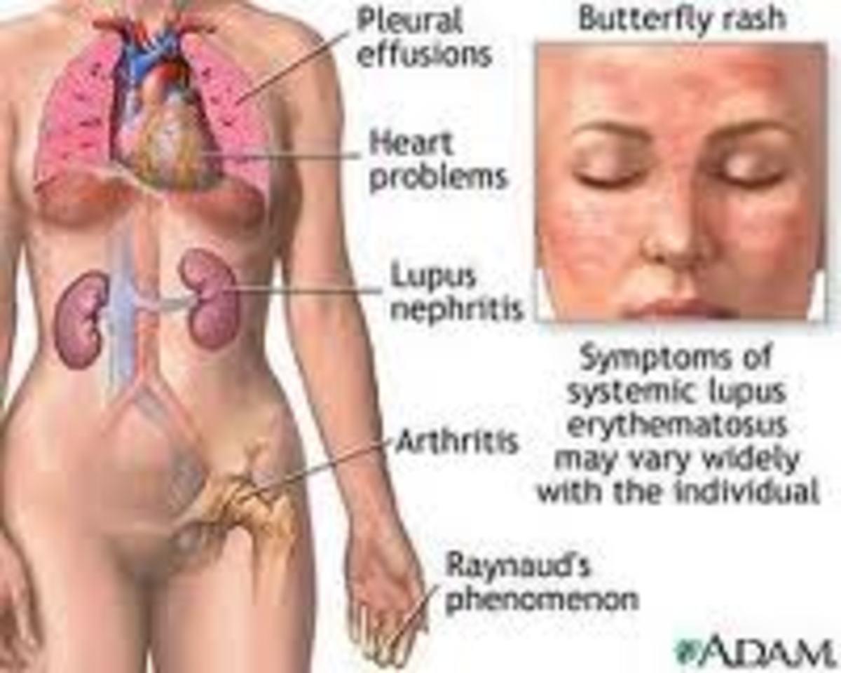 recognizng-systemic-lupus-erythematous
