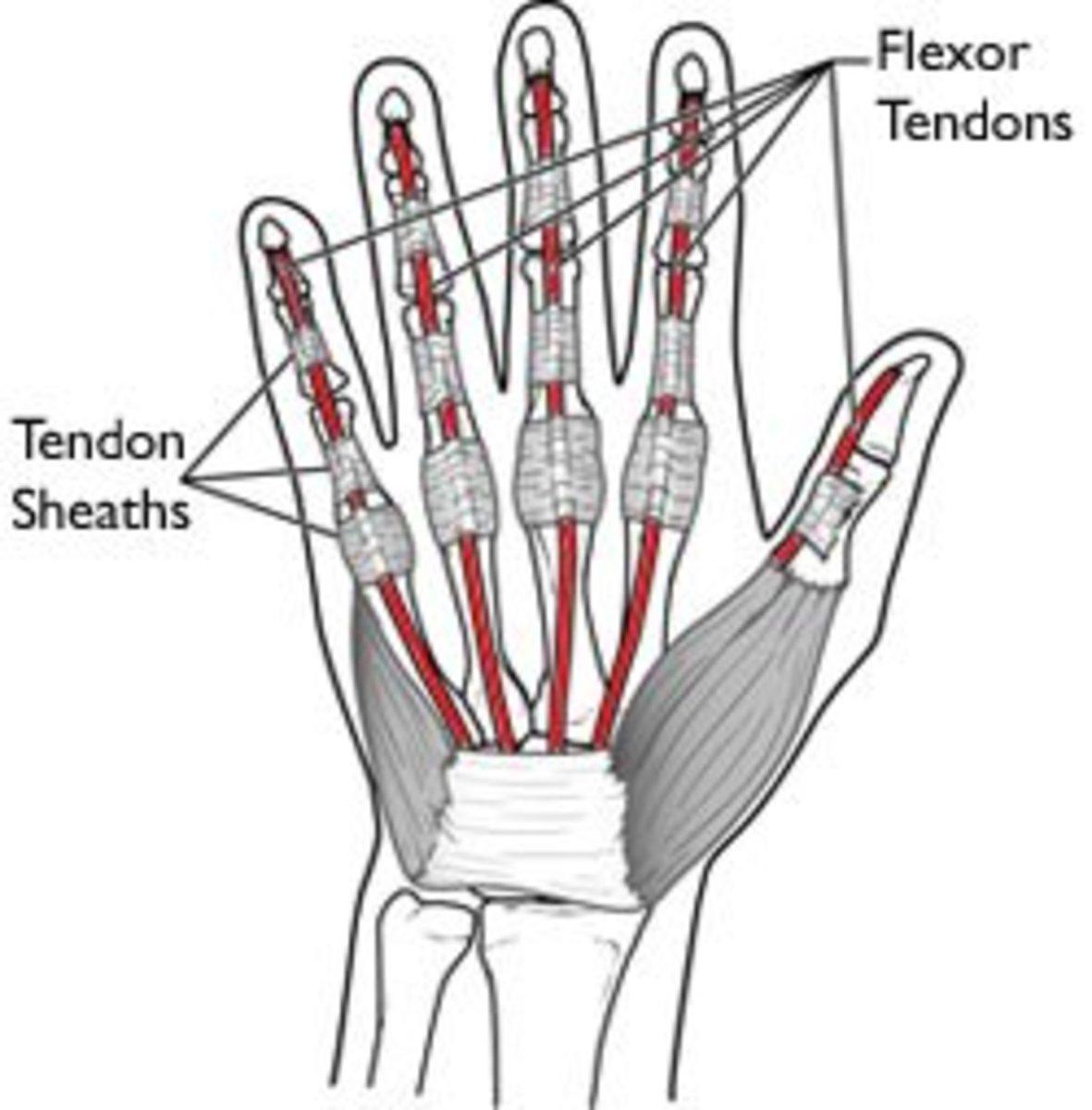A Severed Flexor Tendon In Pinky Finger