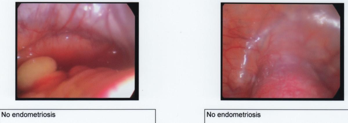 A healthy abdomen - no signs of endometriosis.