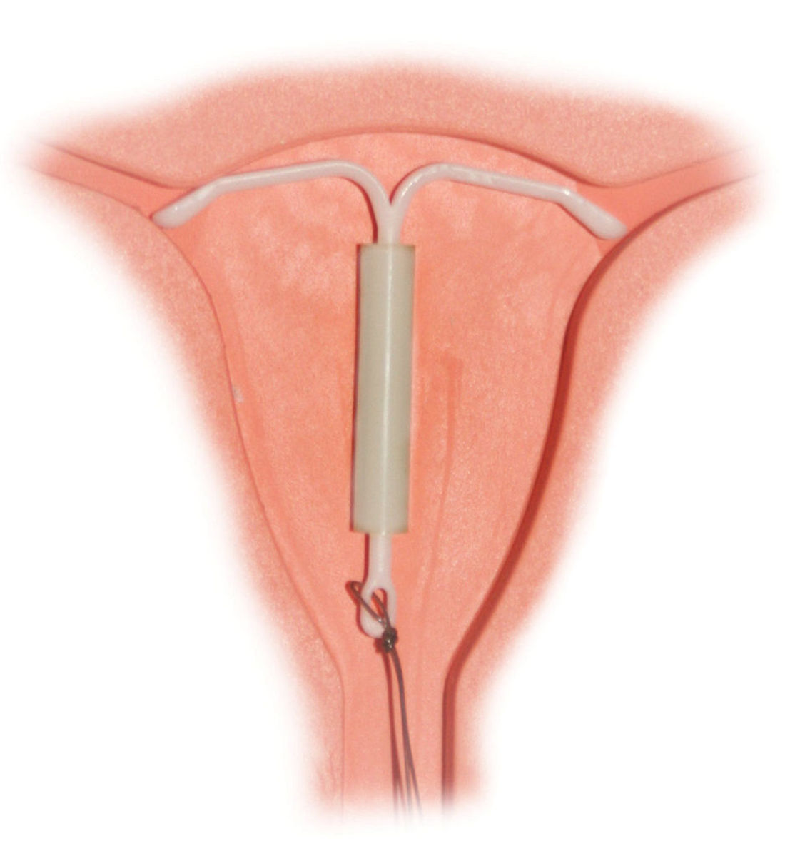 Mirena IUD in a anatomical model