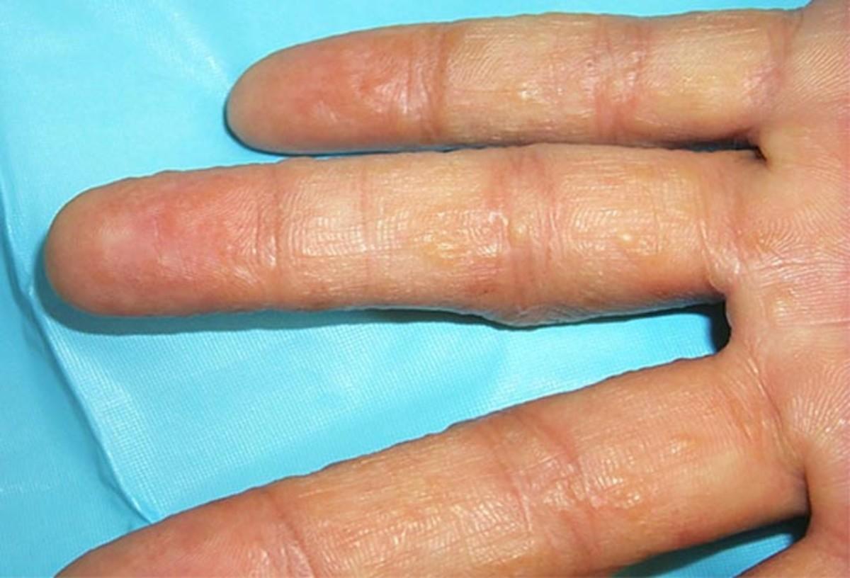 how-i-treated-my-pompholyx-eczema-dyshidrotic-dermatitis-skin-condition