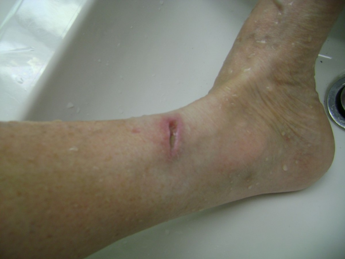 8/25/2012. This was the healing progress  after starting the antibiotic Ciprofloxacin, Dakin's Solution soaks, and application of the silver carbon fiber.