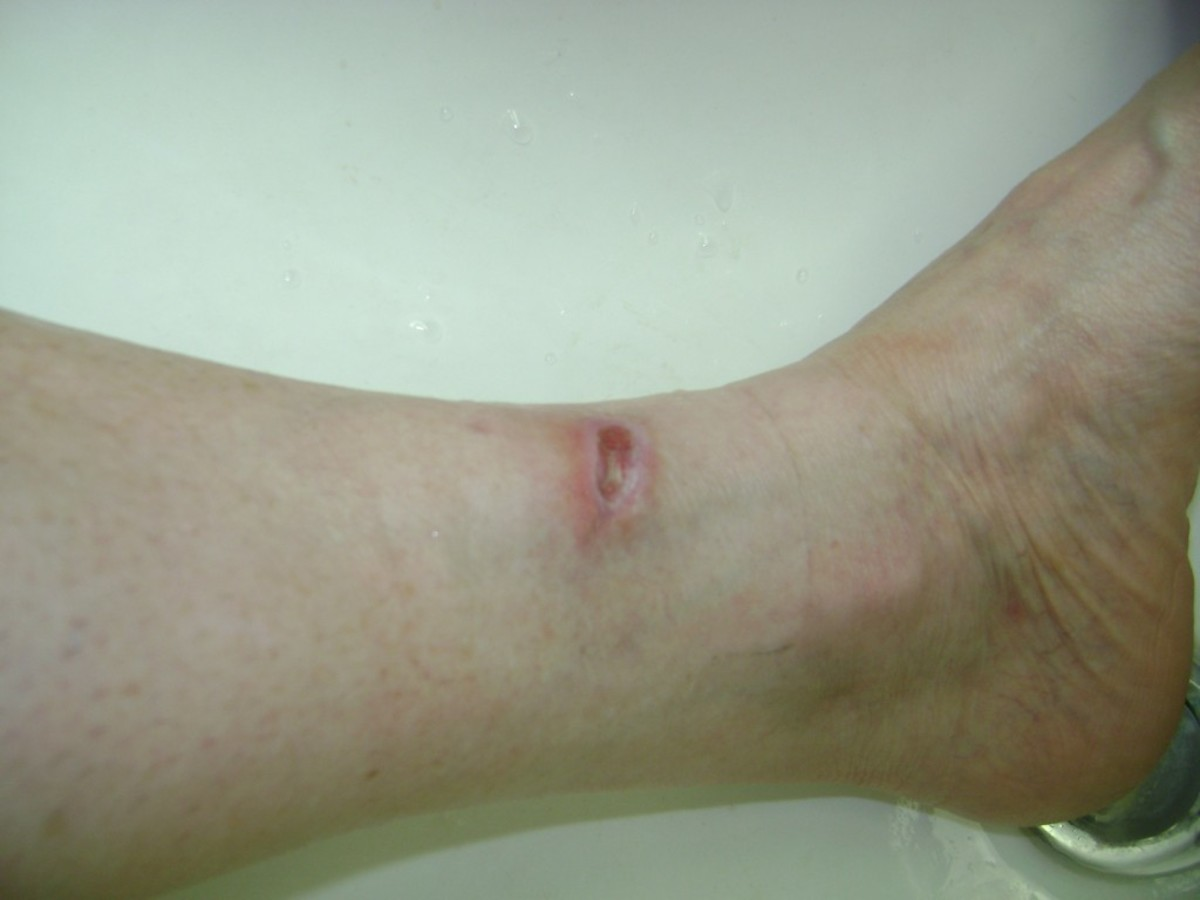9/7/2012. I experienced stinging and pain from the nerve repair. My circulation returned to the area.