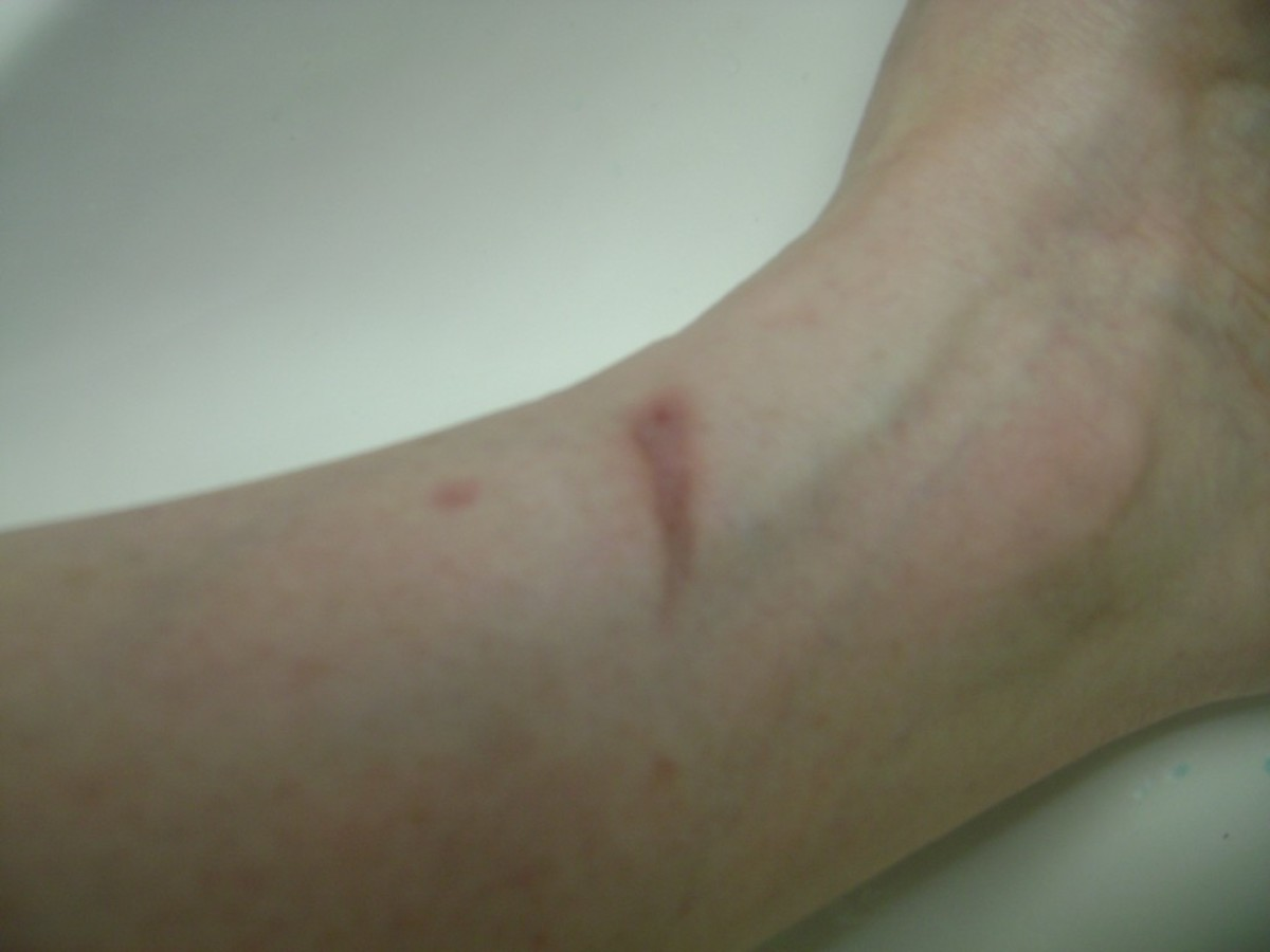 3/17/2013. Six months later, all that was left was a scar.