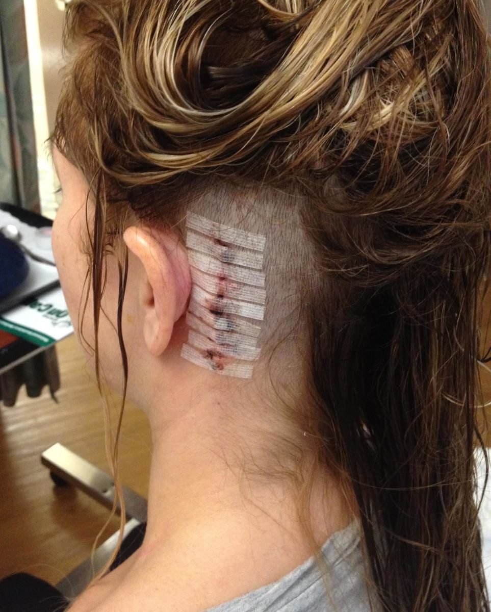 trigeminal-neuralgia-how-i-survived-the-suicide-disease