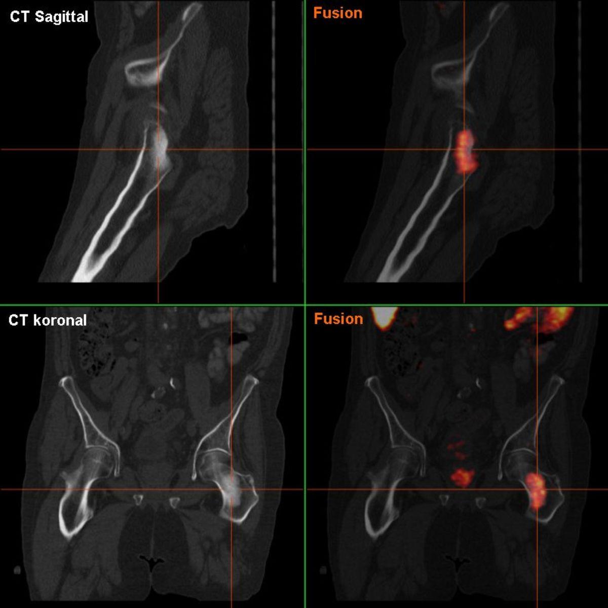 Image of Prostate Cancer