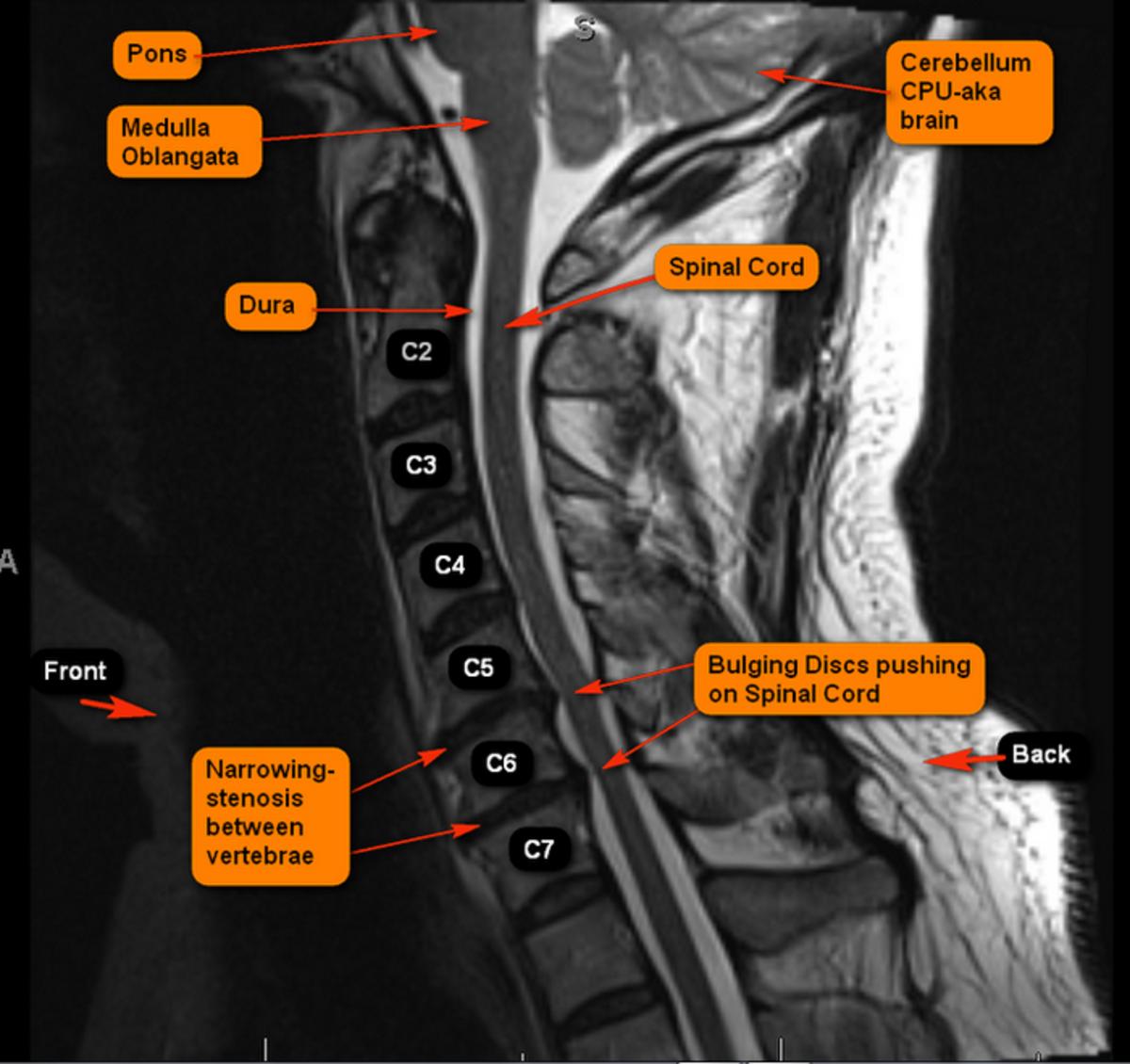 MRI Showing Spinal Landmarks, Narrowing, and Bulging of the Vertebrae