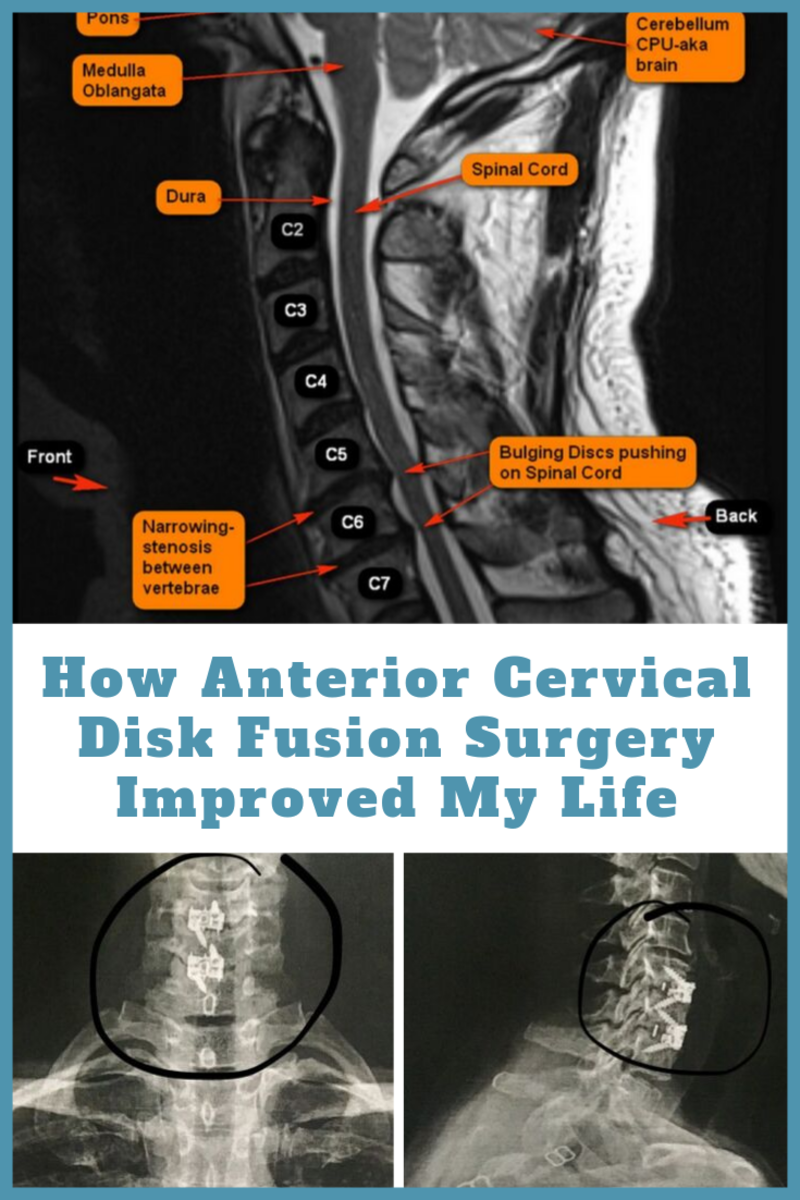 How Anterior Cervical Disk Fusion Surgery Improved My Life