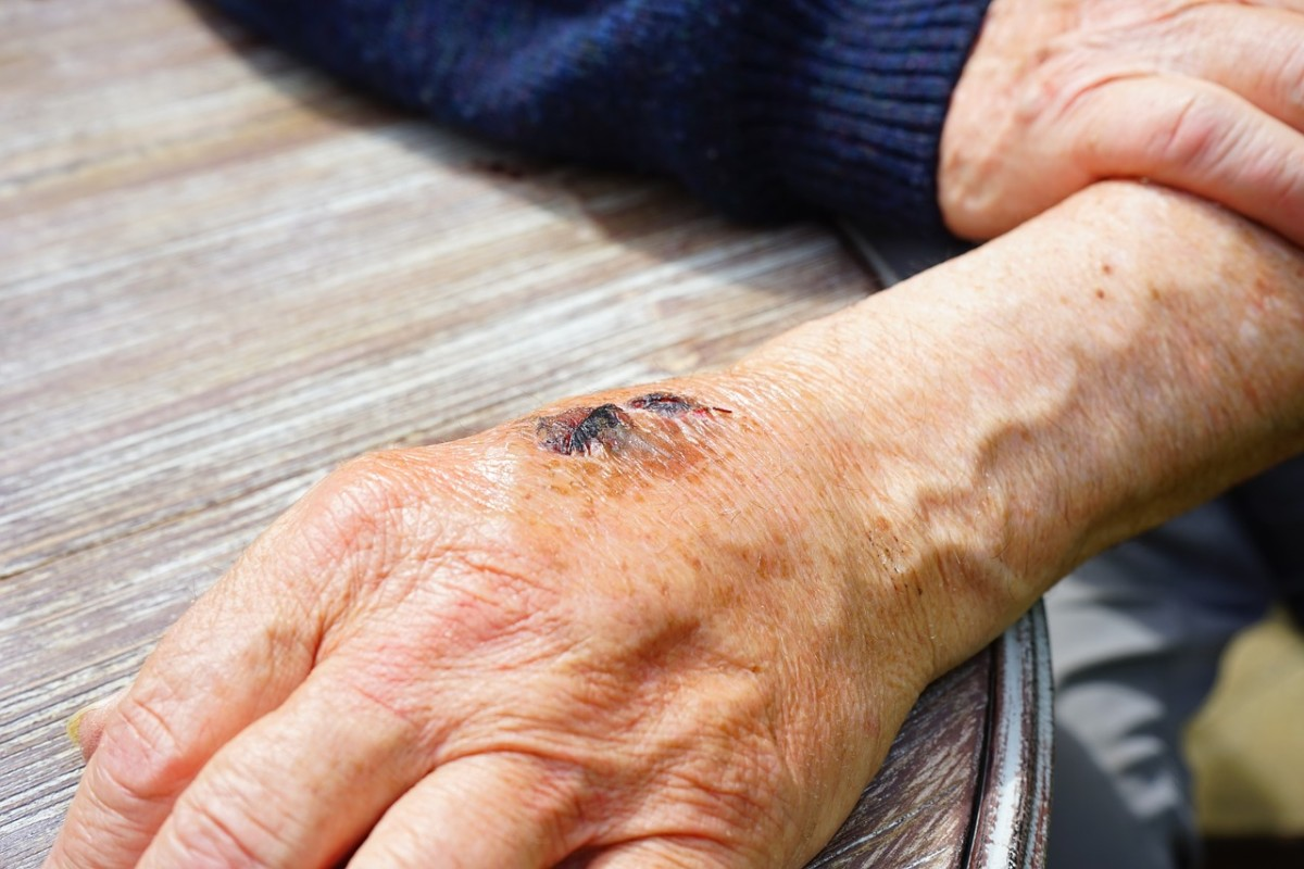 If not taken care of properly, aging skin may crack and bleed.