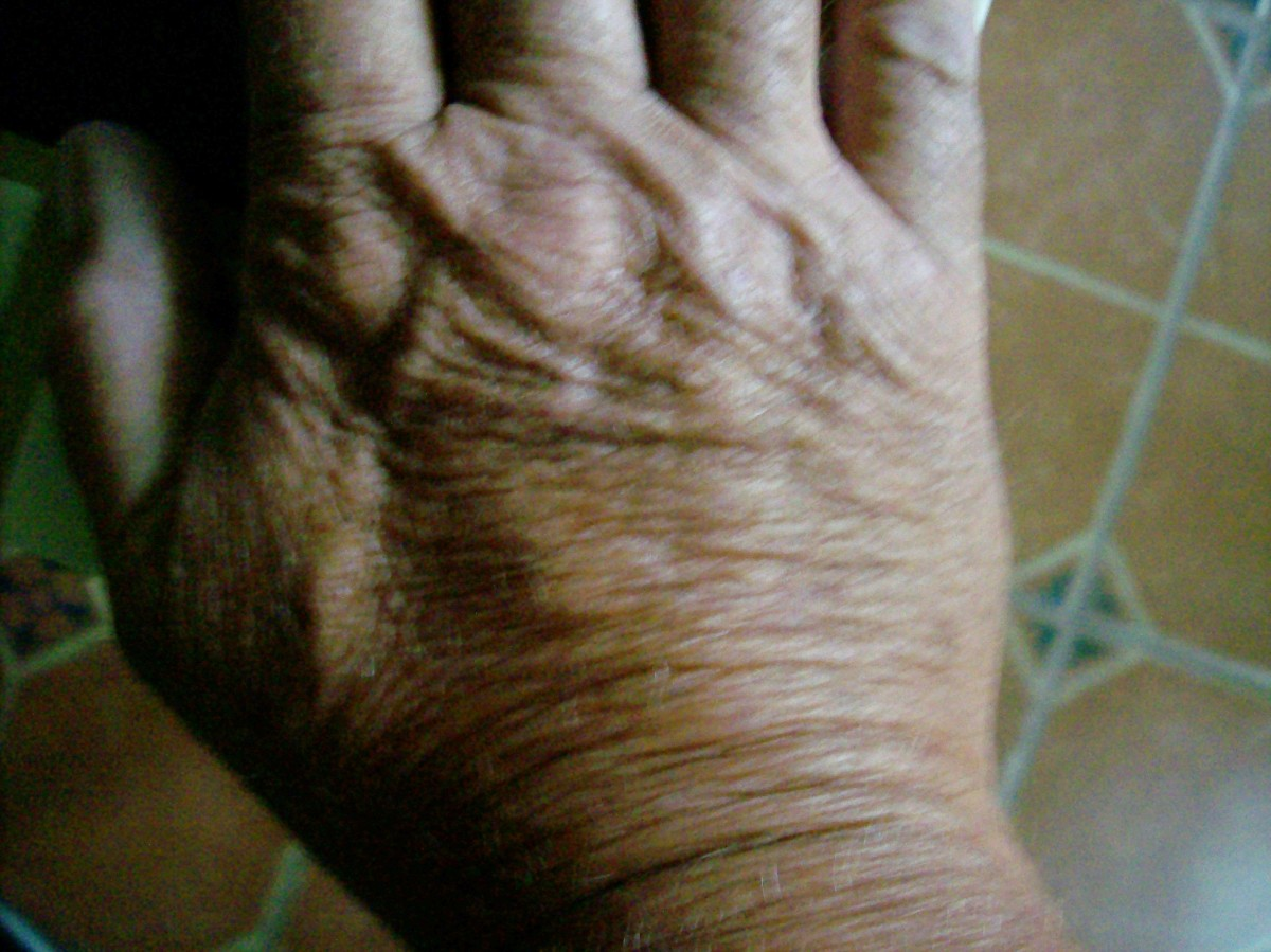 A hand with crepey skin and deep wrinkles.