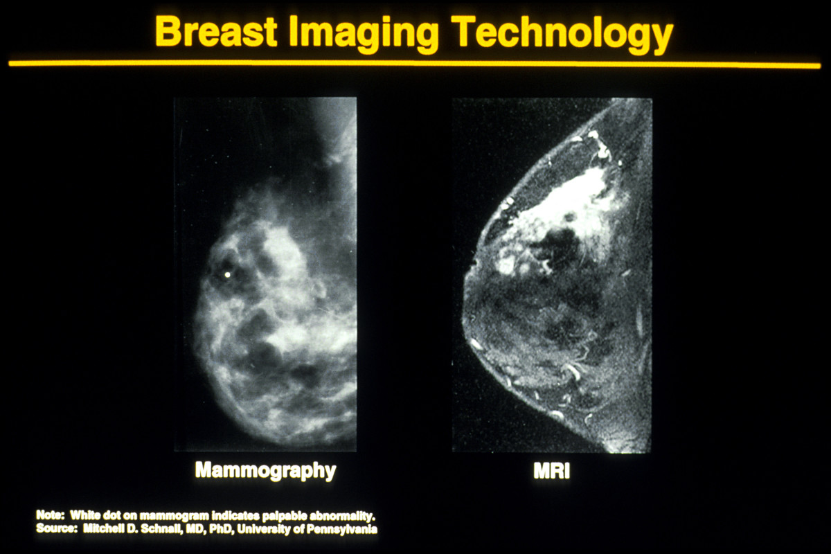 A mammography on left and a Magnetic resonance image (MRI) on right. Breast imaging technology has changed over the years. Note MRI's enhancement ability to confirm diagnosis.