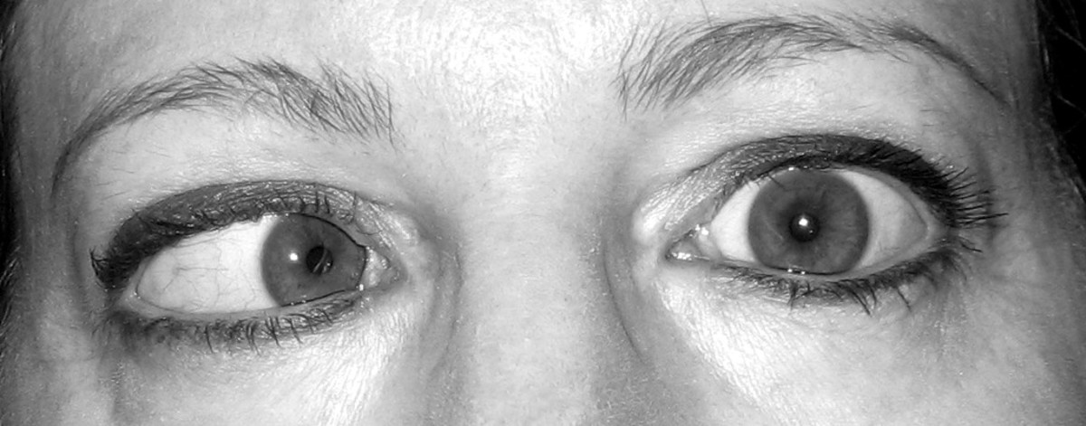 My eyes today when I look to the left. The right eye moves; the left eye doesn't.
