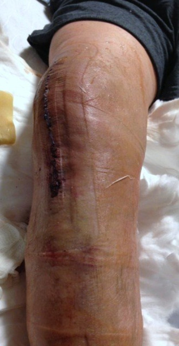 This photo isn't for the faint at heart, but I thought the incision was so precise and impressive that I had to share. This was taken 36 hours after surgery, when the dressing was removed and replaced with another Aquacel covering.